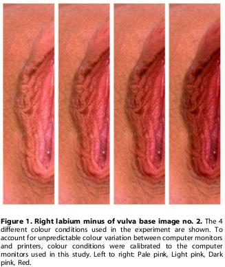 Outside vagina Ejaculate